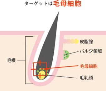 ターゲットは毛母細胞